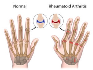 Rheumatoid Arthritis Pain Relief In Orlando, FL - Harmony Wellness Center