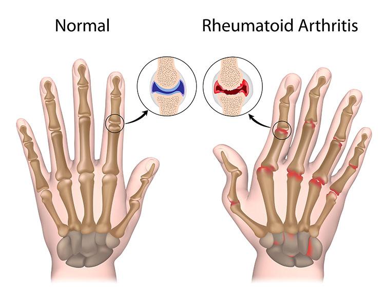 Acupuncture For Arthritis Pain Relief Orlando FL - Harmony ...